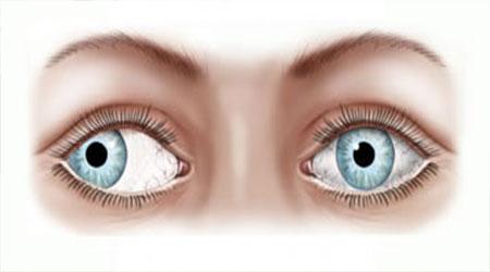 انحراف چشم چیست و چگونه درمان می شود