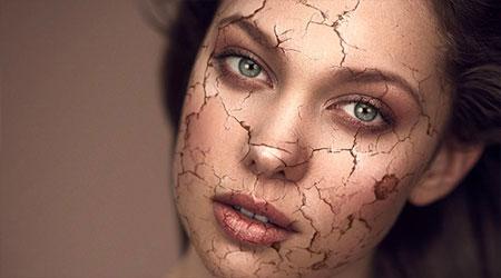 شایع ترین علت خشکی پوست چیست؟