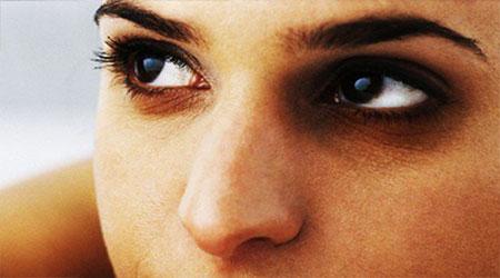 محلول رفع کبودی دور چشم